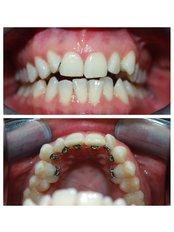 Lingual Braces - Viva Dental Studio