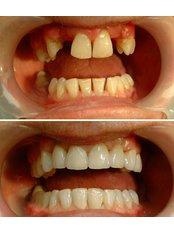 Single Implant - Tibor Dental - London