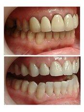 Dental Crowns E-max - Tibor Dental - London