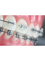 Six Months Braces (All inclusive) - ODL Dental Clinic