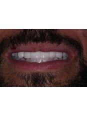 Zirconia - metal free - Lovesmile - Dental Implant and Cosmetic Centre