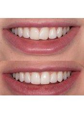 Invisalign™ - Andrea Ubhi Cosmetic Dentistry