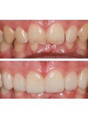 Veneers - Andrea Ubhi Cosmetic Dentistry