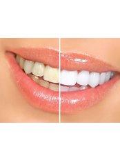 Teeth Whitening - Andrea Ubhi Cosmetic Dentistry
