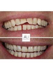 Composite Bonding - Andrea Ubhi Cosmetic Dentistry