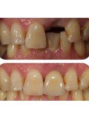 Dental Implants - Andrea Ubhi Cosmetic Dentistry