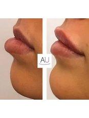 Dermal filler injections - Andrea Ubhi Cosmetic Dentistry