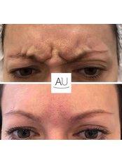 Wrinkle reduction treatment - Andrea Ubhi Cosmetic Dentistry