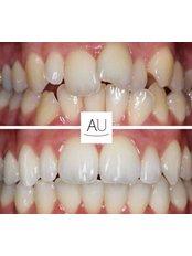Intermediate Braces - Andrea Ubhi Cosmetic Dentistry