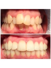 Orthodontics - Deddington Dental