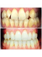 Braces - Deddington Dental