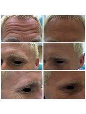 Treatment for Wrinkles - Deddington Dental