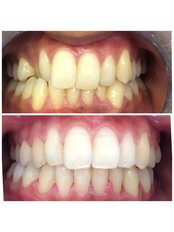 Invisalign™ - Deddington Dental