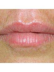 Facial Rejuvenation - Dr Alison J Brown BDS