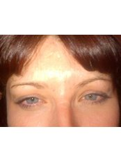 Treatment for Lines and Wrinkles - Beauty Skin Deep Cosmetics
