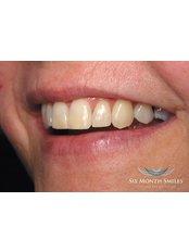 Inman Aligner™ - Aesthetique Dental Care