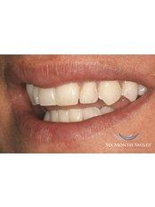 Six Month Smiles™ - Aesthetique Dental Care