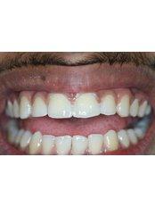 Dental Bonding - Aesthetique Dental Care