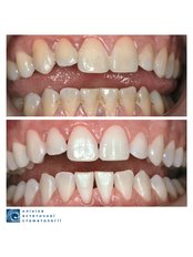 Teeth Cleaning - Clinic of Aesthetic Dentistry