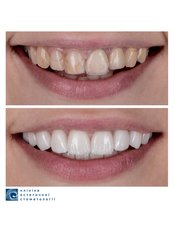 Porcelain Crown - Clinic of Aesthetic Dentistry