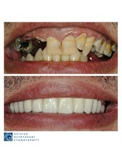 All-on-6 Dental implants (per one jaw) - Clinic of Aesthetic Dentistry