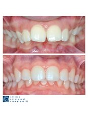 Ceramic (Clear) Braces  - Clinic of Aesthetic Dentistry