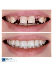 Dental Crowns - Clinic of Aesthetic Dentistry
