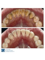 Hygienist Session - Clinic of Aesthetic Dentistry