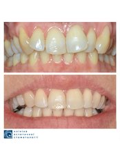 Braces - Clinic of Aesthetic Dentistry
