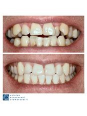 Adult Braces - Clinic of Aesthetic Dentistry