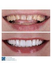 Veneers - Clinic of Aesthetic Dentistry