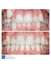 Metal Braces - Clinic of Aesthetic Dentistry