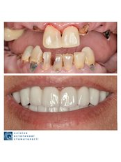 Full Mouth Rehabilitation - Clinic of Aesthetic Dentistry