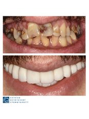 Dental Implants - Clinic of Aesthetic Dentistry