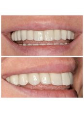 All-on-4 Dental implants (per one jaw) - Clinic of Aesthetic Dentistry