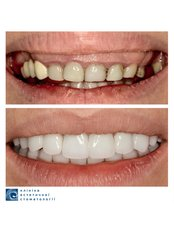 Zirconia Crown - Clinic of Aesthetic Dentistry