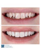 Porcelain Veneers - Clinic of Aesthetic Dentistry