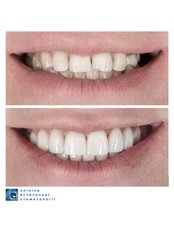 Permanent Crown - Clinic of Aesthetic Dentistry