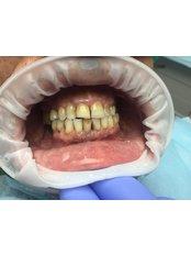 All-on-6 Dental Implants - Medical Democracy agency