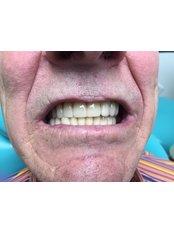 All-on-4 Dental Implants  - Medical Democracy agency