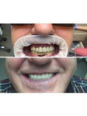 Full Mouth Rehabilitation  - Medical Democracy agency