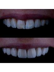 Porcelain Veneers - Hellenic Dental Clinic