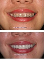 Cosmetic Dentist Consultation - Minh Thu