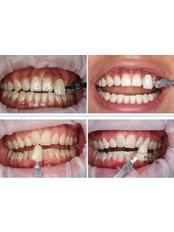 BriteSmile™ Teeth Whitening - Viet Uc Dental Clinic