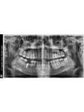 Digital Panoramic Dental X-Ray - Viet Uc Dental Clinic