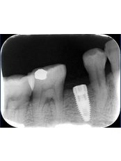 Digital Dental X-Ray - Viet Uc Dental Clinic