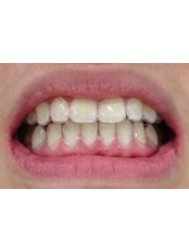 Invisalign™ - Viet Uc Dental Clinic