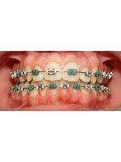 Metal Braces - Viet Uc Dental Clinic