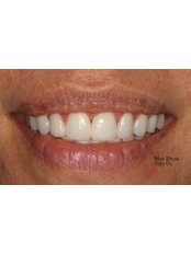 Gum Contouring and Reshaping - Viet Uc Dental Clinic