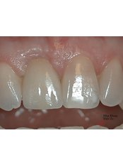 Single Implant - Viet Uc Dental Clinic